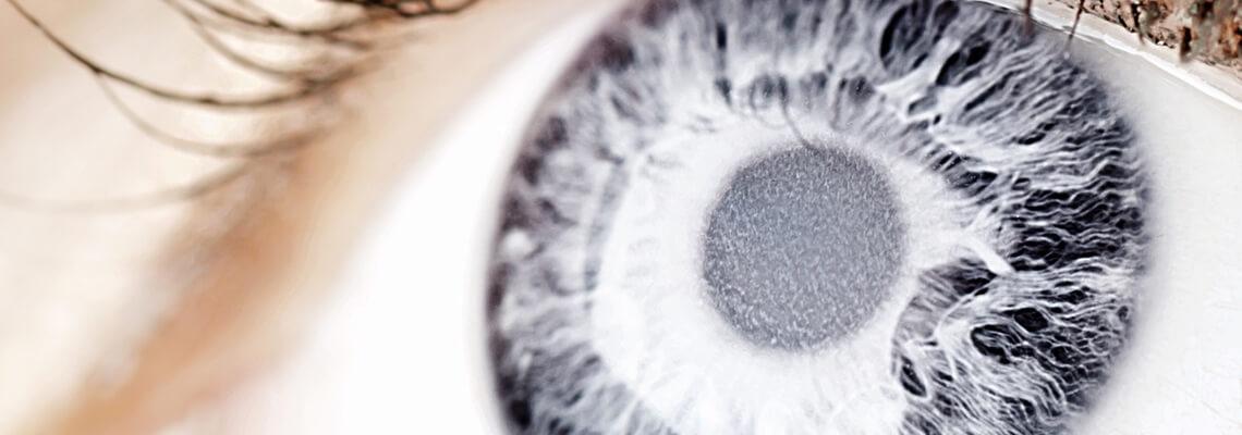 Lens surgery